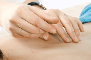 acupuncture for social anxiety